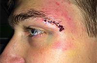 Почему хоккеисты стараются не забивать голы лицом