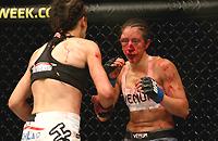 травмы, женские бои, UFC, Джоанна Енджейчик