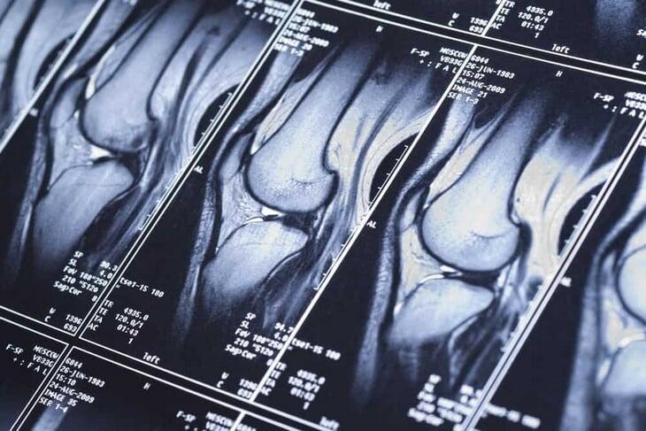Травма Тимофея Мозгова – медицинский детектив. Три года он шел к разгадке