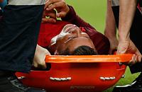 Евро-2016, травмы, Сборная Франции по футболу, Сборная Португалии по футболу, Димитри Пайет, Криштиану Роналду