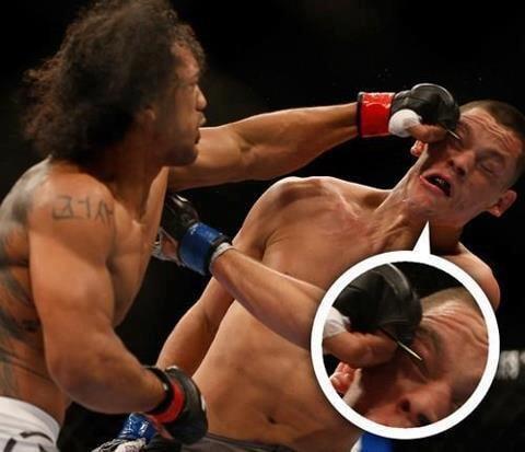 Бывший чемпион UFC дрался с зубочисткой во рту: вредная привычка перешла от отца, а в детстве он едва не задохнулся из-за этого