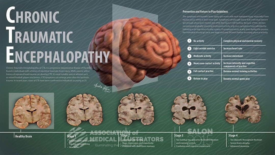 Сотрясение мозга – очень серьезно. Пора перестать восхищаться теми, кто возвращается в поле после травм головы