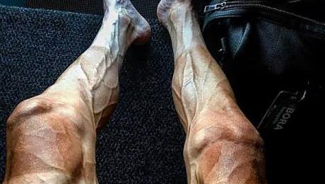 Как выглядят ноги велогонщика на «Тур де Франс»