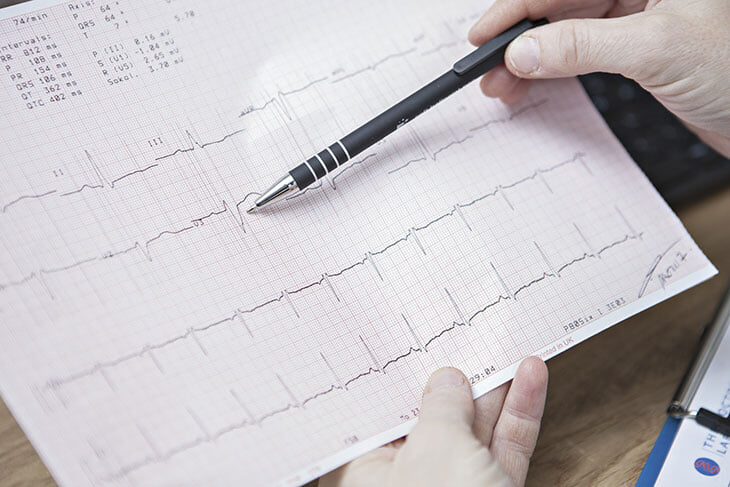 Даже спортсмены умирают из-за внезапной остановки сердца. Как понять, есть ли такой риск для вас