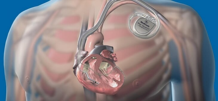 Эриксену установили кардиовертер-дефибриллятор. Что это такое и можно ли с ним играть в футбол?