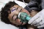 Шведские врачи бьют тревогу: сирийских детей убивали в кадре для фейка о газовой атаке